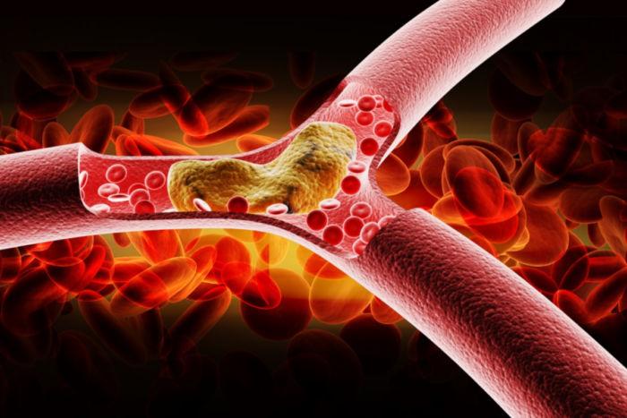 human papillomavirus hpv definition hookworm autoimmune therapy